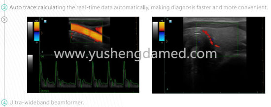 Ysd286 Portable Color Doppler Ultrasound Sscanner pictures & photos