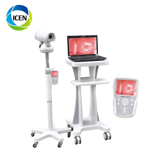 IN-G9800A Portable Laptop Medical Equipment Digital Electronic Video Surgical Gynecological Colposcopy Equipment
