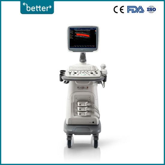 Full Digital Ultrasound Scanner 3D 4D Color Doppler Sonoscape S11
