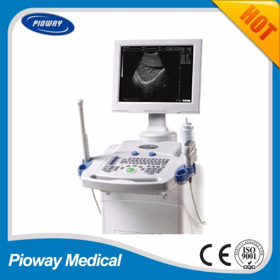 Ce Approved Full Digital Trolley Ultrasound Scanner (PW-9618C)