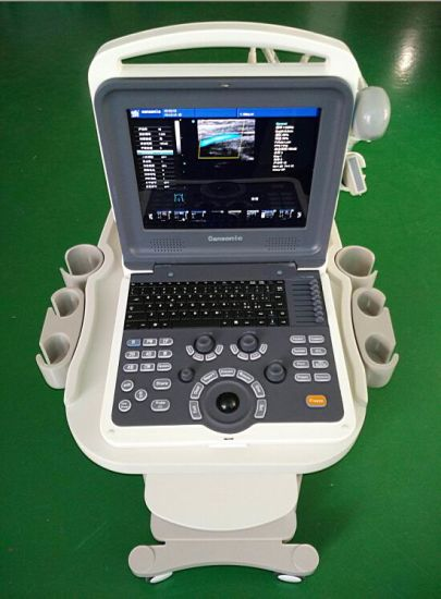 China Ultrasound Scanner Manufacturer Trolley pictures & photos