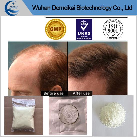China 10g Sample Finasteride Powder Key Treatment for Hair