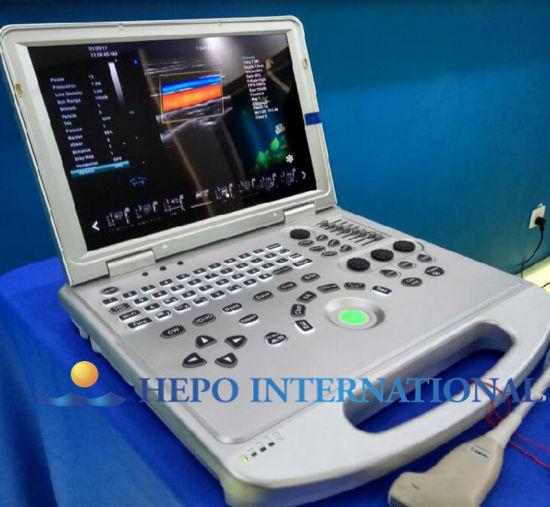 Medical Hospital Equipment Scanner Portable Ultrasound