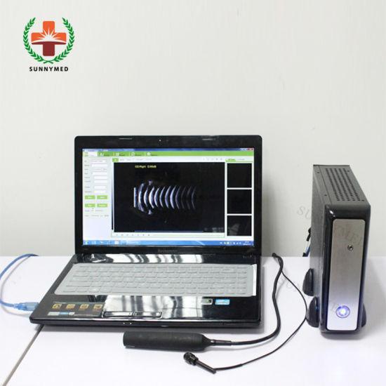 Sy-A041-1 Hosputal Digital Ophthalmic Scanner Eye Examination Equipment