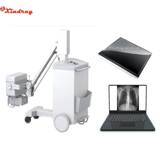 Hospital Equipment China High Frequency Digital Radiography Portable Medical X Ray 100mA Mobile X-ray Machine