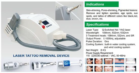 Best Seller Tattoo Removal with Shooting Aim System Ndyag Laser pictures & photos