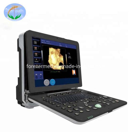 Color Doppler Equipment Diagnostic Color Doppler Ultrasound System