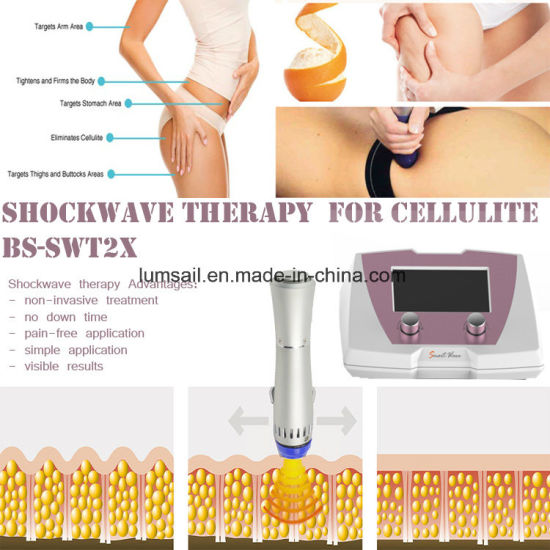 Best Sell Acoustic Wave Therapy Equipment for Cellulite pictures & photos