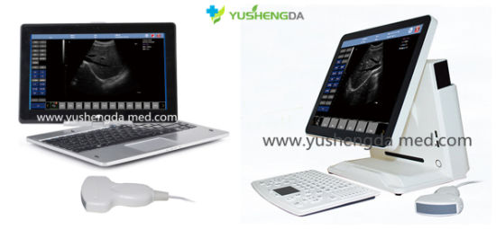 Portable Ce Approved USB Convex Probe Ultrasound Scanner pictures & photos