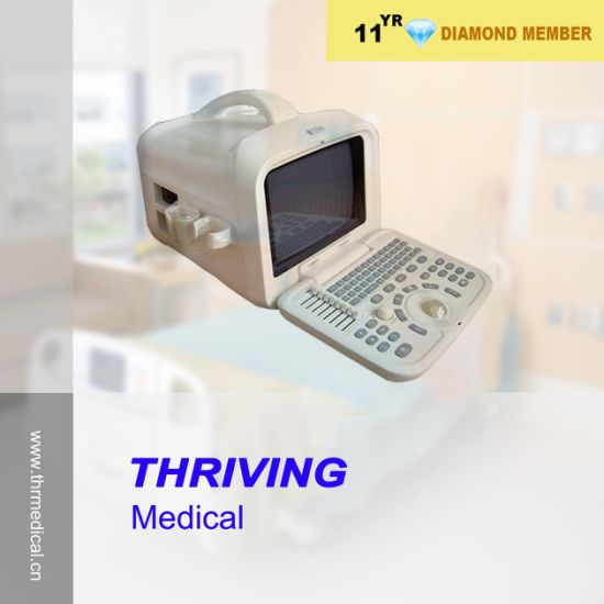 Medical Portable Obstetric Ultrasound Scanner (THR-US6601) pictures & photos