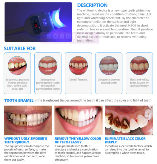 China Home Use Teeth Care Teeth Whitening Machine Cold Light Led