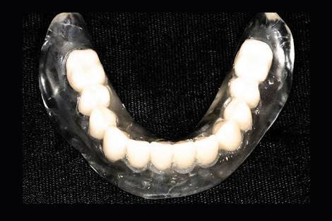 Clear Acrylic Denture Set up Teeth with Bleaching Shade