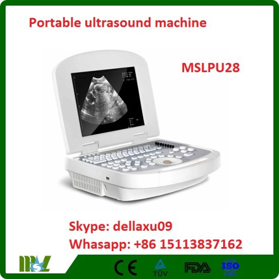 P Portable Ultrasound Machine Price & China B Ultrasound Scanner Mslpu28A pictures & photos