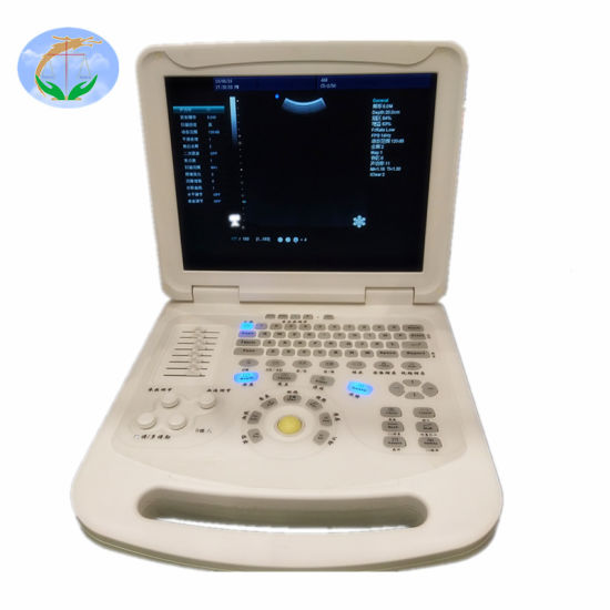 Medical Instrument Color Doppler Portable Ultrasound Scanner with Ce ISO pictures & photos