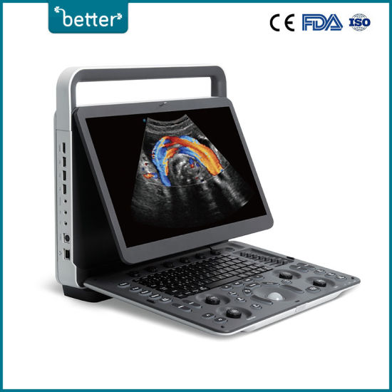 Hospital  Equipment Portable Laptop Ultrasound Machine Sonoscape E2