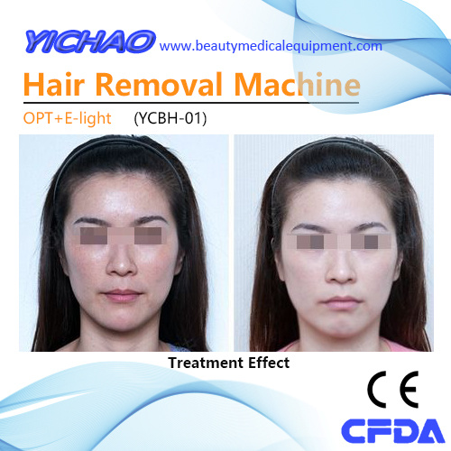 China Hot Sale Elight IPL Skin Rejuvenation Beauty Hair
