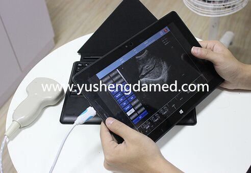USB Ultrasound Scanner Probe for Windows Android Laptop PC Tablets pictures & photos