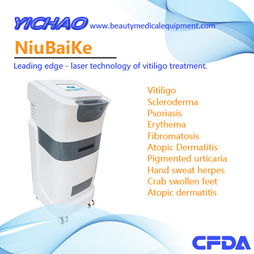 308nm Excimer Laser Machine Treatment Dosing Reference-Wuhan Yichao Technology Co., Ltd.