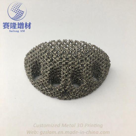 Customized Titanium Porous Medical Implement