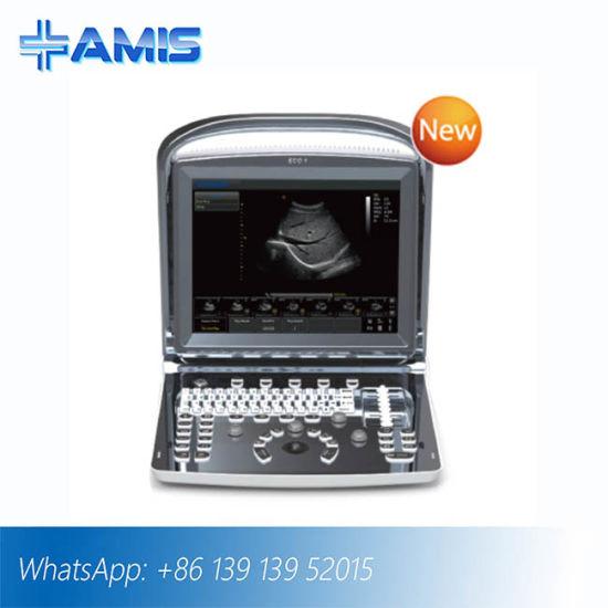 Diagnosis Equipment B/W Portable Ultrasound (AM-ECO1)