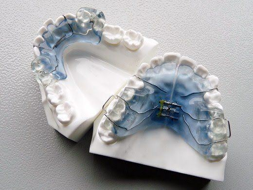 Dental Appliance of Palatal Expander pictures & photos