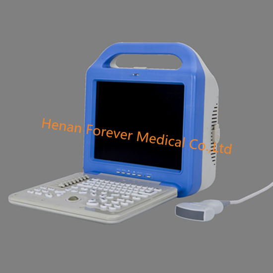 Medical Device Digital B/W Portable Ultrasound Scanner pictures & photos