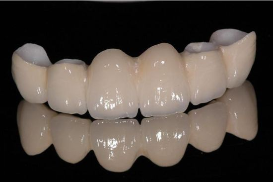 Zirconia Crowns and Bridges From Professional Dental Laboratory pictures & photos