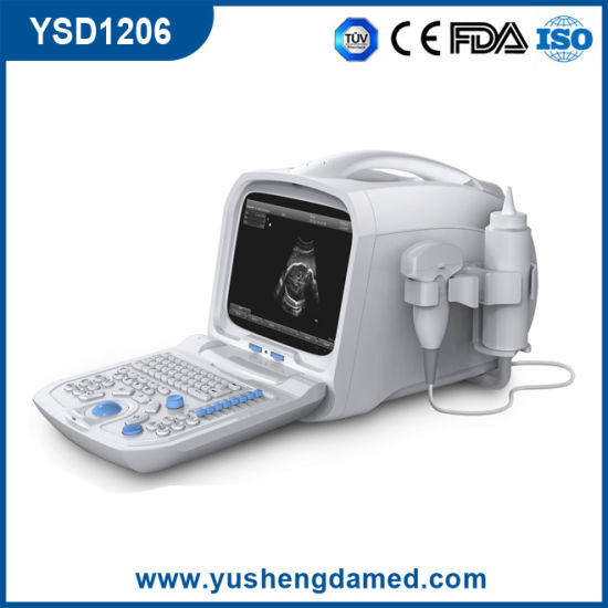 Full Digital Portable Ultrasound Scanner PC Platform Based (YSD1206) pictures & photos