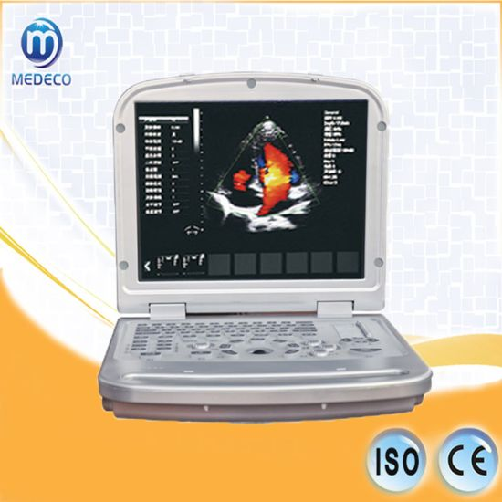 Health Care Centers Me-6018L Laptop Color Doppler Ultrasound Scanner pictures & photos