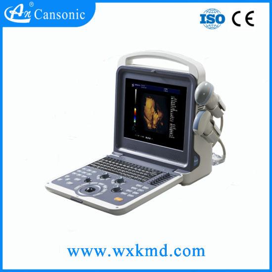 Portable Color Doppler Ultrasound Scanner Similar Chison Eco 5