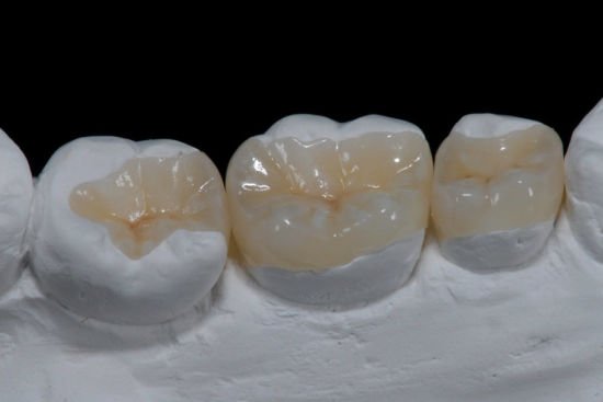 All Ceramic Dental Product of IPS. E-Max Inlay/Onlay From Shenzhen Minghao Dental Lab pictures & photos