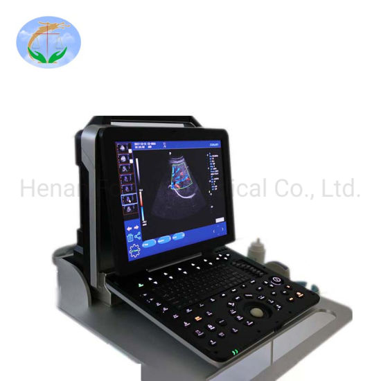 Medical Supply Multifunction Portable 4D Color Ultrasound Scanner