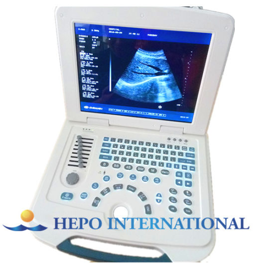 Medical Low Price Portable Ultrasound Scanner pictures & photos