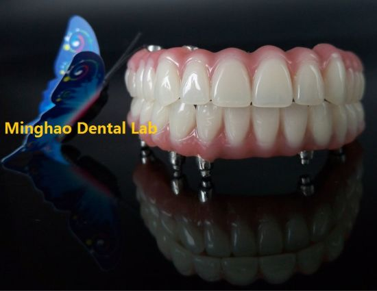 Hybrid Denture Made in Minghao Dental Lab pictures & photos