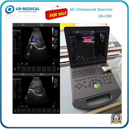 4D Color Doppler Ultrasound Scanner Diagnostic Scanner Un-C60