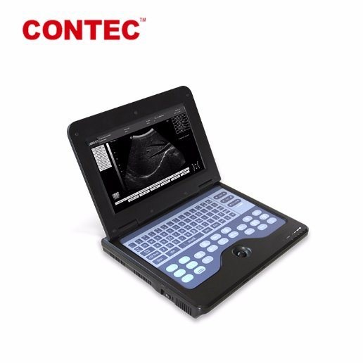 Contec Cms600p2 Portable Digital Ultrasound Scanner Machine Medical Equipment pictures & photos