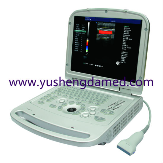 Portable Color Dopler Ultrasound Scanner Ysd516 pictures & photos