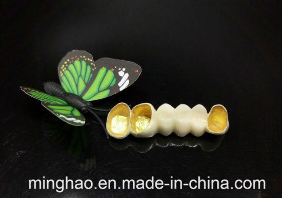 Pfm Captek Porcelain Crowns with Galvanized Frames