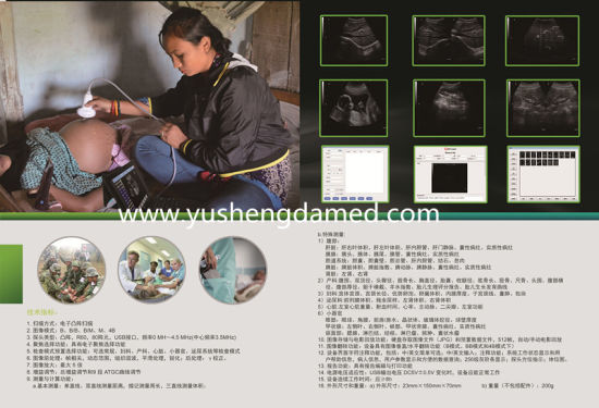 USB Probe Handheld Medical Equipment Ultrasound Scanner pictures & photos