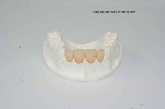 Dental Product of IPS. E-Max Crown From Shenzhen Minghao Dental Lab