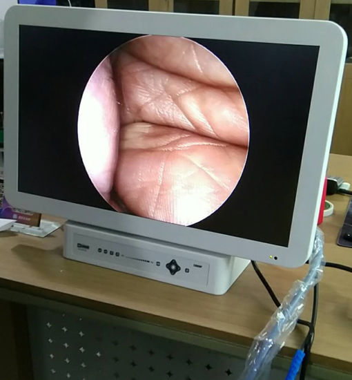 Veterinary Endoscope HD Camera with LED Light and HD Monitor