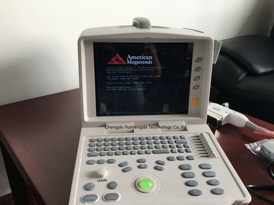 High Qualified Full Digital Portable Ultrasound Scanner pictures & photos