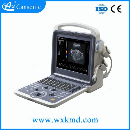 Portable 3D 4D Ultrasound Scanner Medical Product (K6)