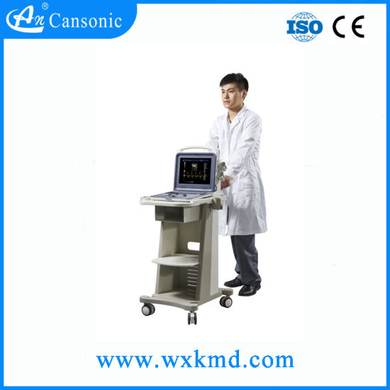 Big Trolley for Portable Ultrasound Scanner pictures & photos