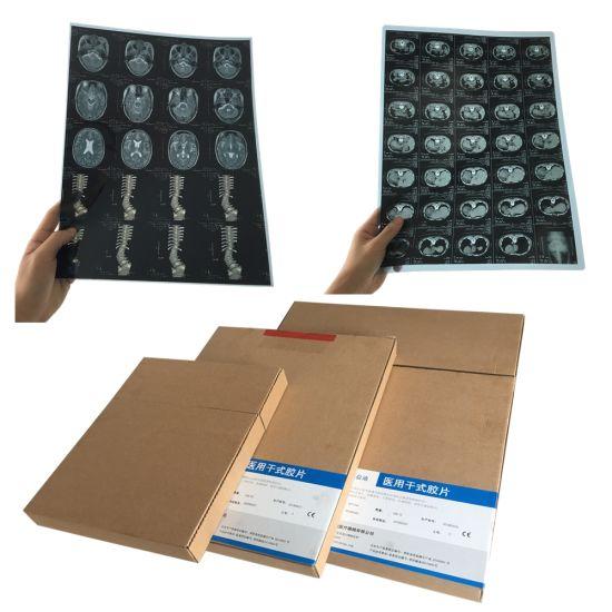 China Medical X-ray Laser Film for Epson and FUJI Printer - China Inkjet Medical  Films, Hot Dry Film