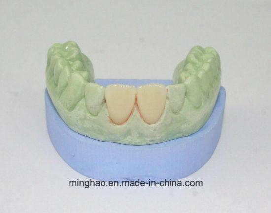 All Ceramic Crown IPS E-Max Veneer CAD/Cam Manufactured