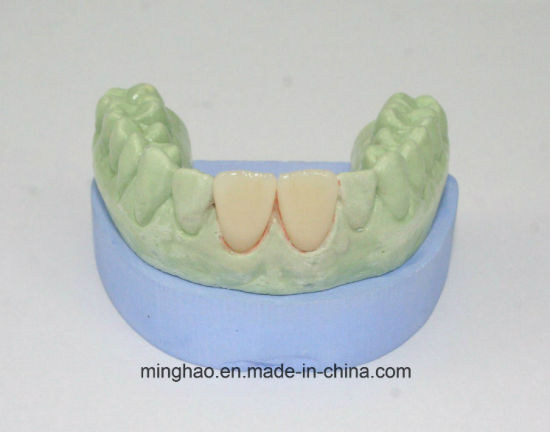 All Ceramic Crown IPS E-Max Veneer CAD/Cam Manufacturer From Shenzhen Minghao Dental Lab
