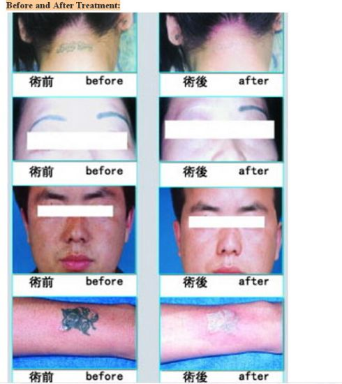 Beijing Sincoheren Mini Laser Tattoo Removal pictures & photos