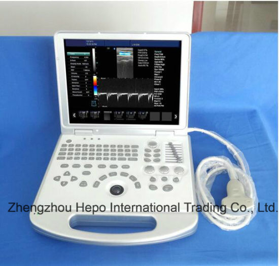 "15"" Monitor Medical Equipment Portable 3D/4D Digital Ultrasound Scanner pictures & photos"