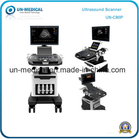 Ultrasound Scanner Hospital Equipment (UN-C80 Plus)